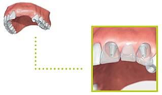 implant05d