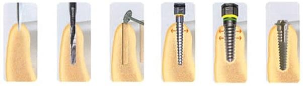 implant12d