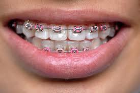 ortodoncja02