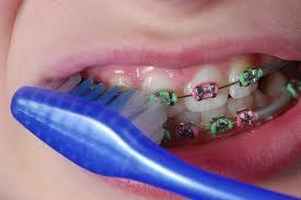 ortodoncja04