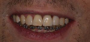 implanto-ortodoncja-po