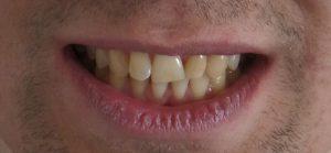 implanto-ortodoncja-przed