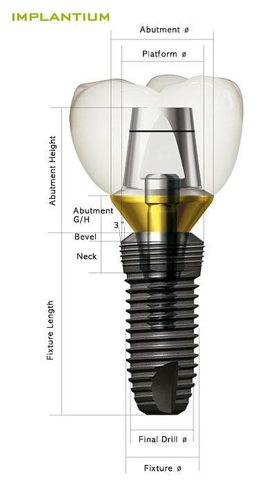 implant-dentium