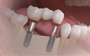 implantologia1